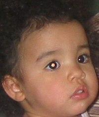 Joli's leukoria photo taken 2 months prior to diagnosis