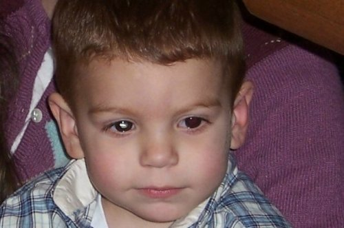Age 2 1/2 leukoria photo